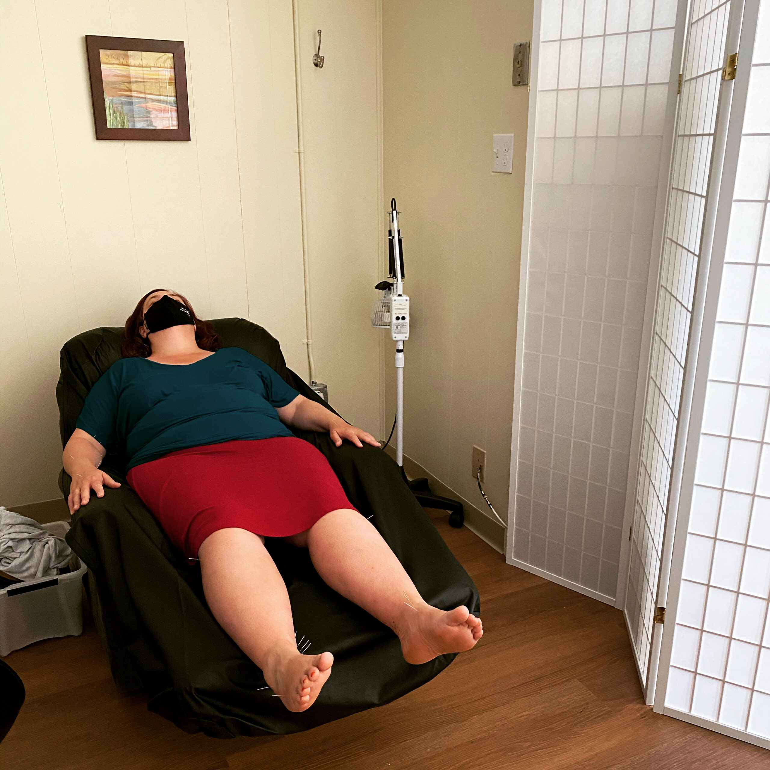 community acupuncture comfortable setting